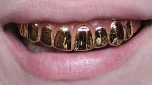استخدام الذهب في طب الأسنان